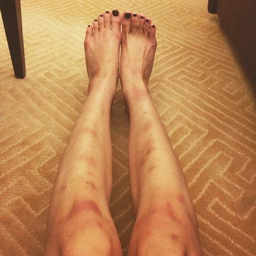 梁齊昕早前在Instagram貼出一張腿部受傷的照片/Photo Credit: Chai Yan Leung facebook