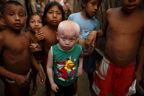 """Kipigaliler Harris, 5, who is part of the albino or """"Children of the Moon"""" group in the Guna Yala indigenous community, stands with friends and relatives outside his house as they look at the camera on Ogobsugun Island in the Guna Yala region Panama April 28, 2015."""