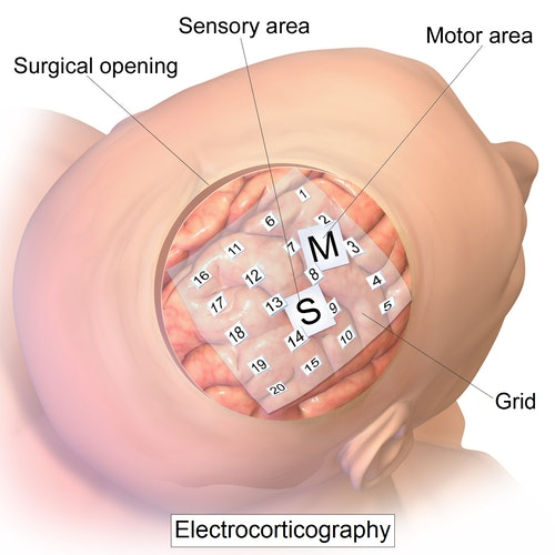 Intracranial_electrode_grid_for_electroc